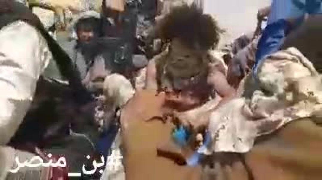 شاهد عشرات الاسراء من الحوثيين في يد الجيش الوطني اليمني